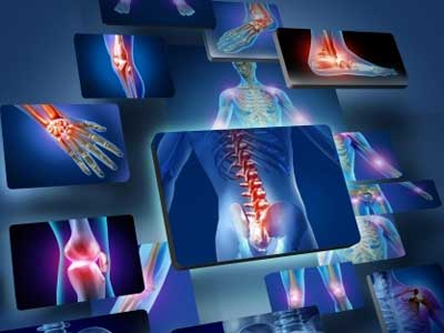 Joint Pain and Injury X-Rays